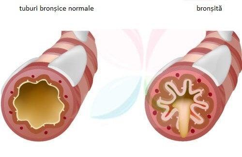 Bronsita1