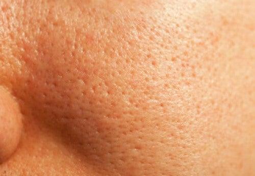 Remediu natural pentru pori deschiși