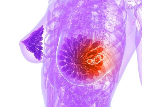 cancer-la-sân