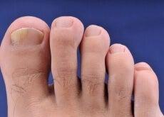 ciupera unghiilor