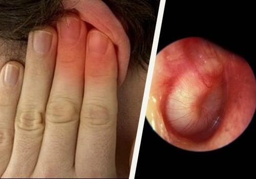 Desfundarea urechilor în mod natural acasă