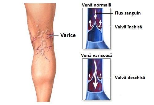 doare piciorul în varicoză