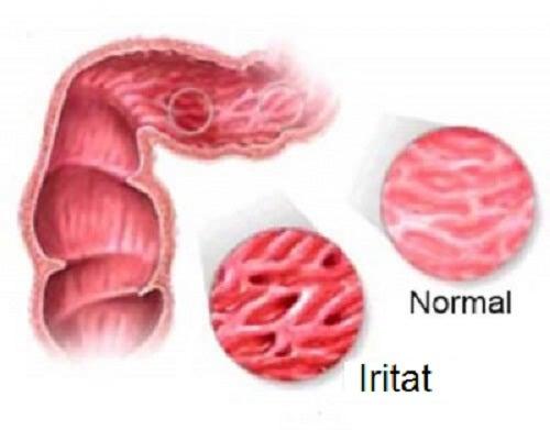 Intestin iritabil: atenție! Alimente interzise