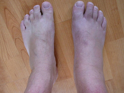 Picioare gută
