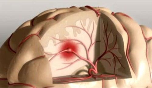 Cum să previi un accident vascular cerebral