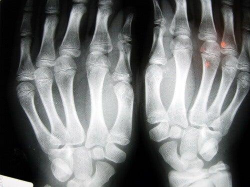 Radiografie după pocnitul degetelor