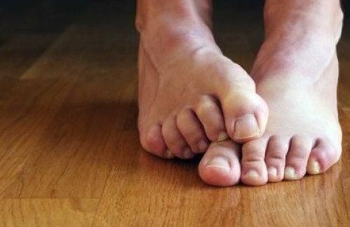 Remedii naturale pentru onicomicoză aplicate pe picioare