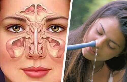 Tratament pentru sinuzită simplu și natural