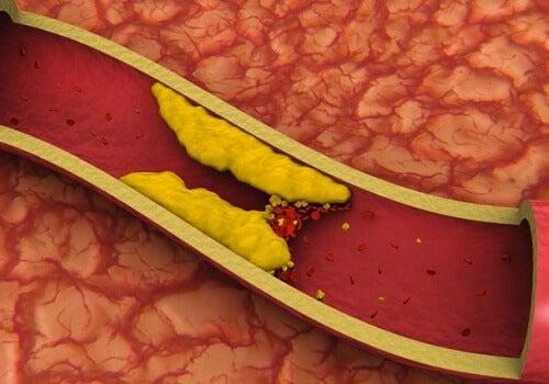 Ține sub control colesterolul mare, în mod natural