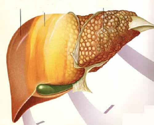 Fructe pentru persoanele cu ficat gras