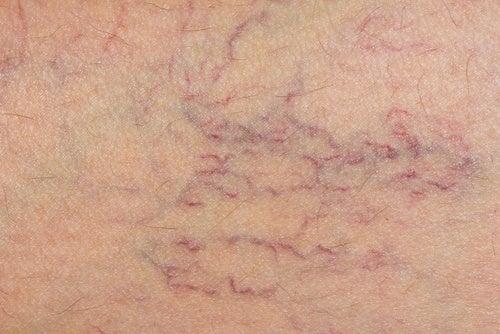 6 tratamente pentru reducerea aspectului varicelor