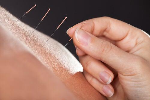 Acupunctura menopauza