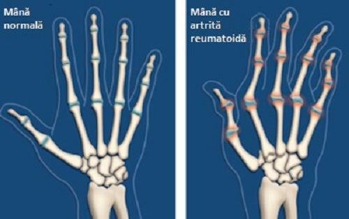 Artrită la mâini