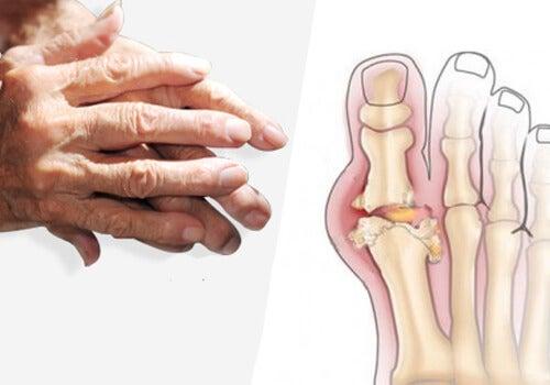 Câteva tipuri de tratament pentru artrită