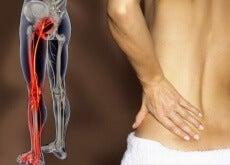 Sciatica provoacă durere