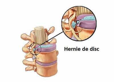 Hernie de disc – 5 simptome și cauzele acesteia