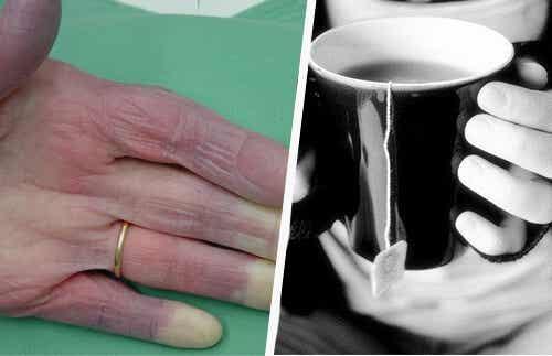 Mâinile reci: posibile cauze și tratament