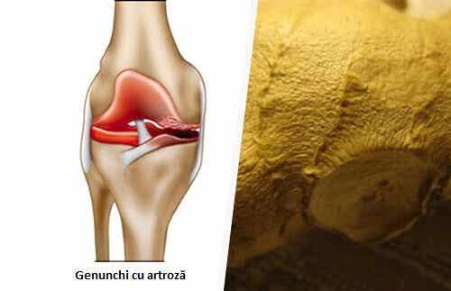Sfaturi pentru ameliorarea simptomelor osteoartritei