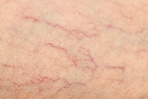 cât de repede se dezvoltă varicele venele păianjen sunt cauzate de
