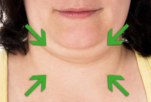 Sfaturi și leacuri despre cum să scăpăm de gușă