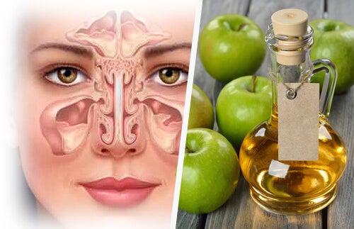 Sinuzita poate fi tratată în mod natural