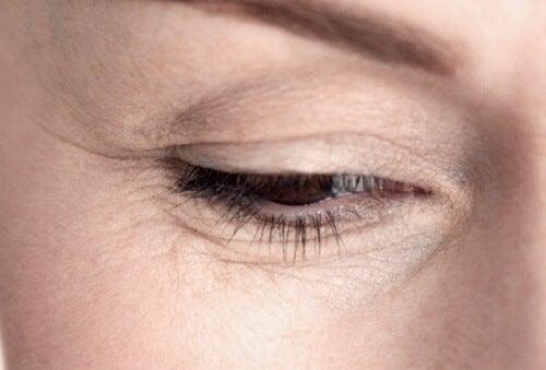 Cum să reduci aspectul ridurilor de sub ochi