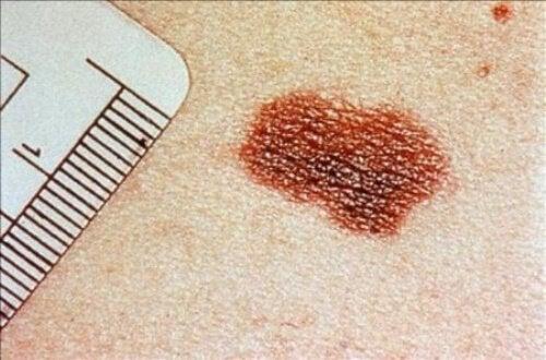 Afecțiunile pielii pot indica prezența unor boli grave precum cancerul