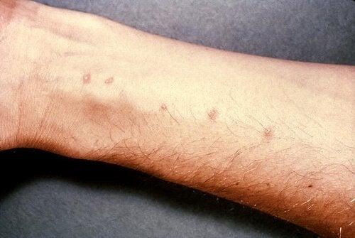 Afecțiunile pielii pot duce la apariția unor pete