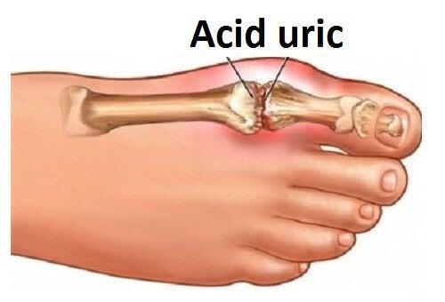 Cum reduci acidul aric din articulații
