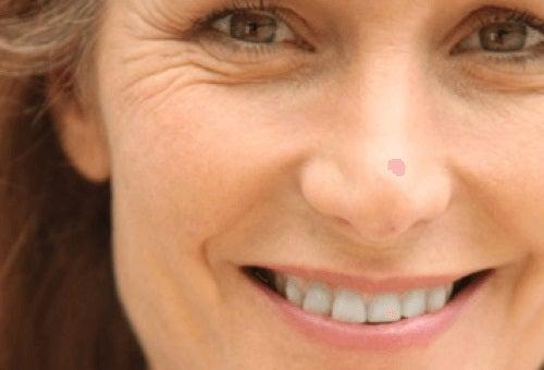 Expresii faciale ce provoacă riduri premature
