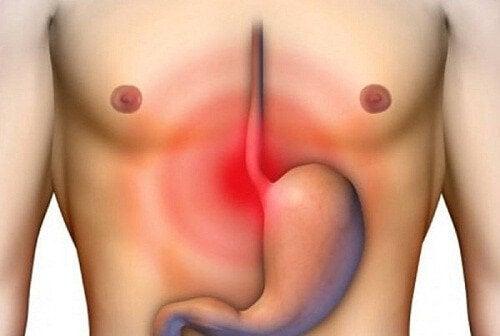 Inflamația esofagului: simptome