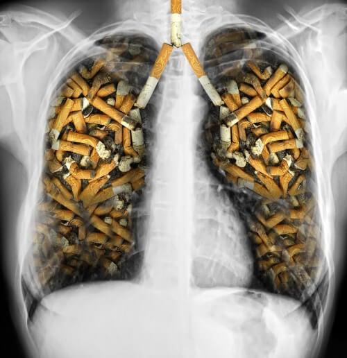 Plămânii sunt afectați de fumat