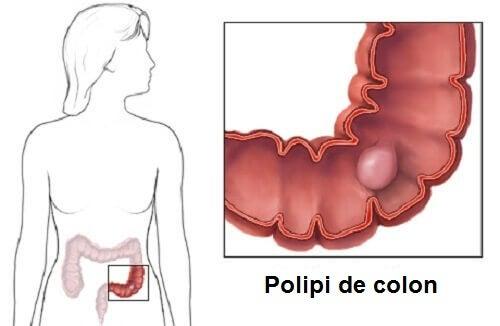 Polipii de colon: diagnosticare