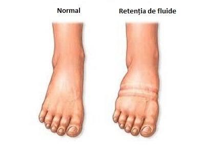 Retenția de fluide