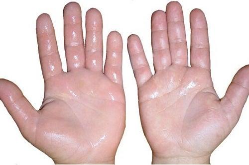 Soluții împotriva transpirației excesive din palme