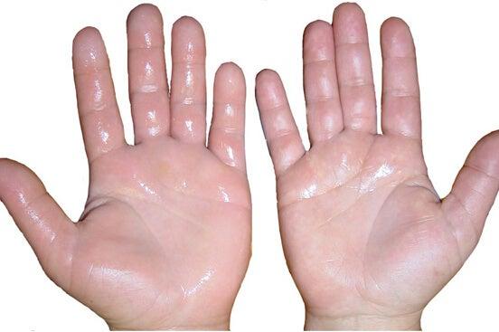 Transpirația excesivă: sudoare pe mâini