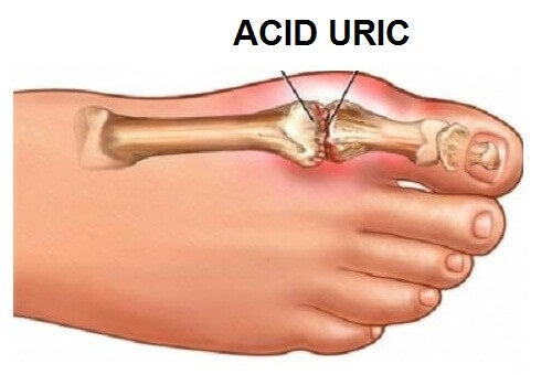 Acid uric, anghinare