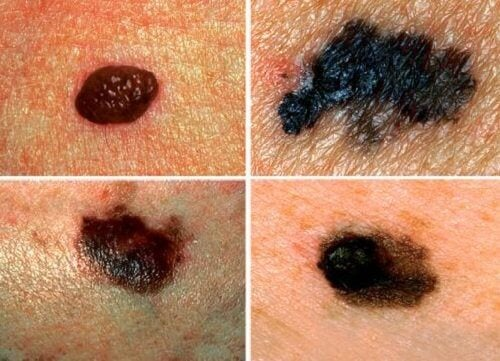 Cancerul de piele: simptome
