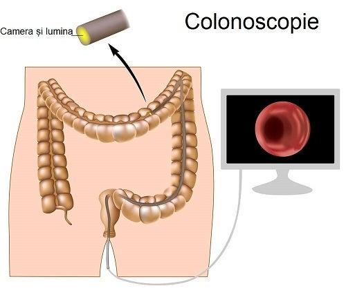 Informații despre cancerul de colon și colonoscopie