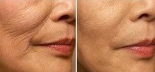Fața, semne de îmbătrânire