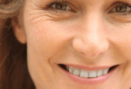 Riduri inestetice urâțesc fața