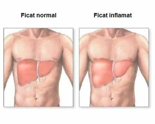 Inflamația ficatului – simptome și remedii