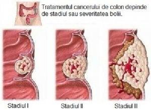 Cum să elimini mucusul din plămâni - Doza de Sănătate