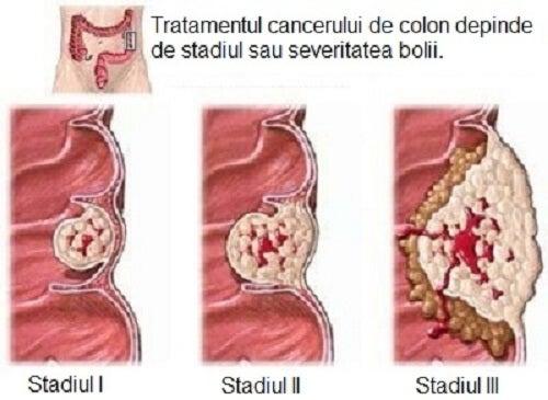 Informații despre cancerul de colon