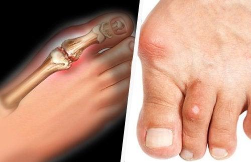 Piciorul afectat de acid uric