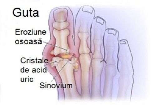 Cum să scăpați de cristalele de acid uric care provoacă gută