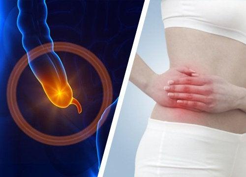 Cum recunoști simptomele apendicitei