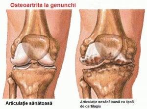 Cum poti trata osteoartrita, Osteoartrita de calcai