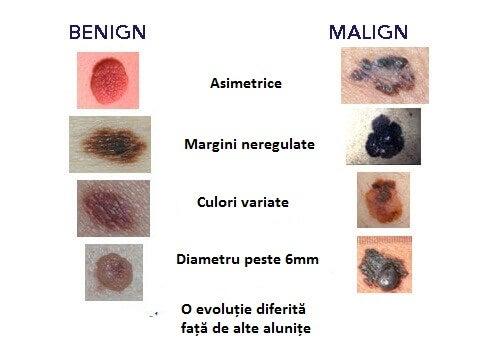 Simptomele cancerului de piele prezente la alunițe