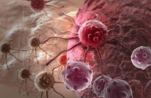 Zahărul provoacă cancer